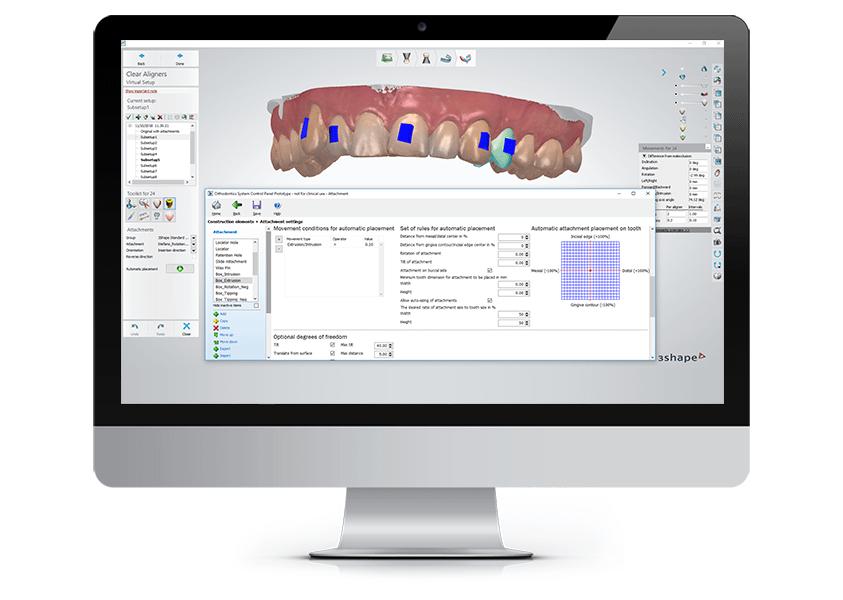3Shape Clear Aligner Studio - All-in-one Orthodontic Solution