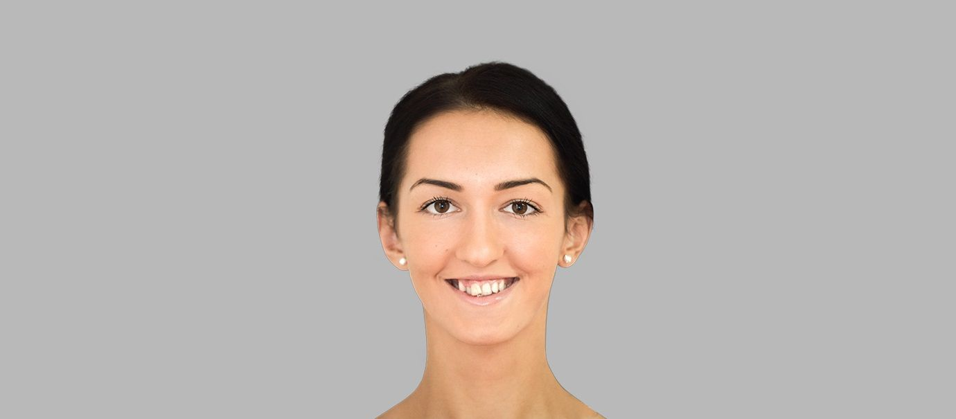 2D smile designs with 3D scans
