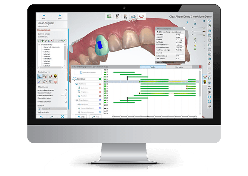 3shape Dental System An Integrated Cad Cam Solution For Labs