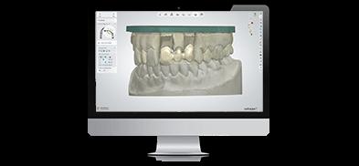 3Shape Lab Scanners - 3D Dental Model & Impression Scanning