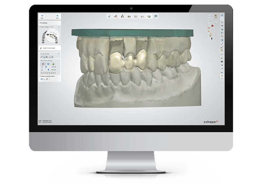 3Shape Lab Solutions - Powerful CAD/CAM Systems for Dental Labs
