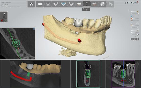 3Shape implant studio dental software