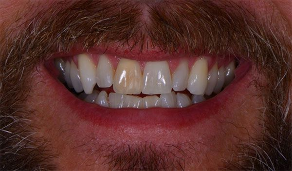 Dentist evaluates img1