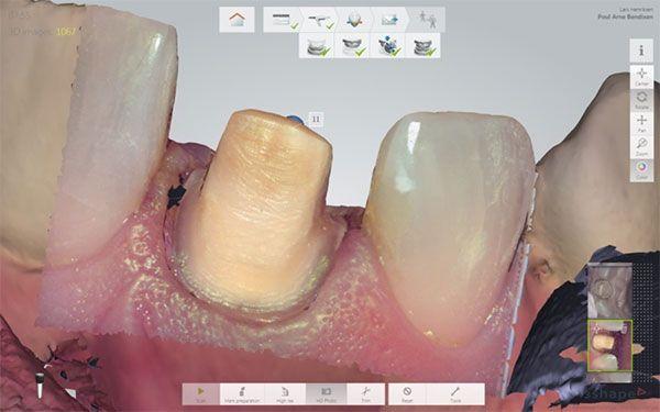 Dentist evaluates img3jpg