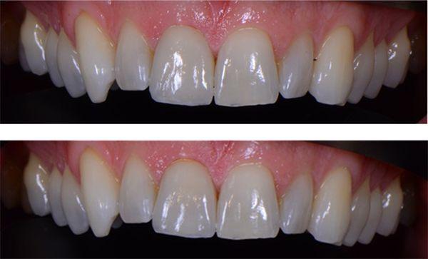 Dentist evaluates img6