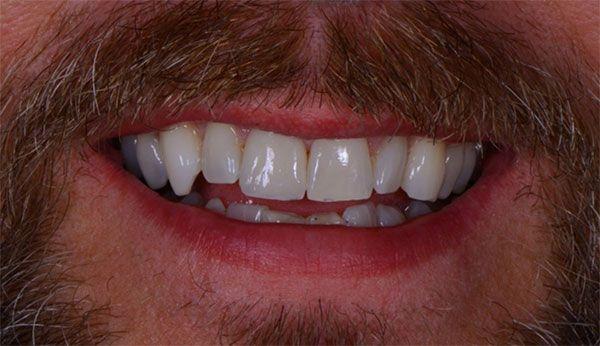 Dentist evaluates img4