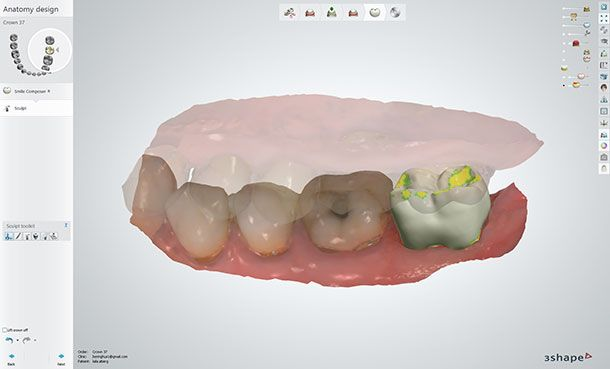 Designing the model-free crown in Dental System