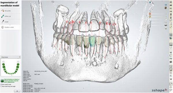 Looking inside Ortho System 2013