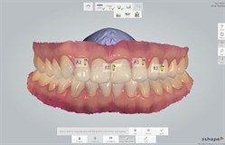TRIOS Teeth Shade Measurement