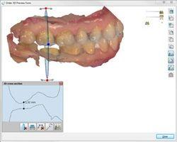 3D Preview option 3Shape