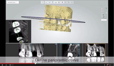 Implant Studio by 3Shape
