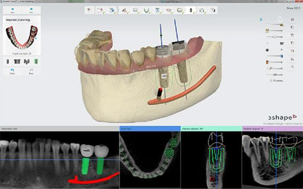 Implant Studio and Orthodontic software get upgrades