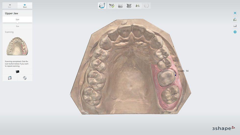 3Shape intraoral scanning application
