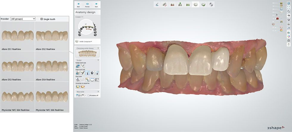 Smile Compose 2.0 with integrated Sculpt Toolkit