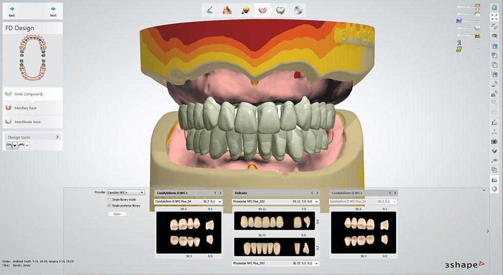 denture design software