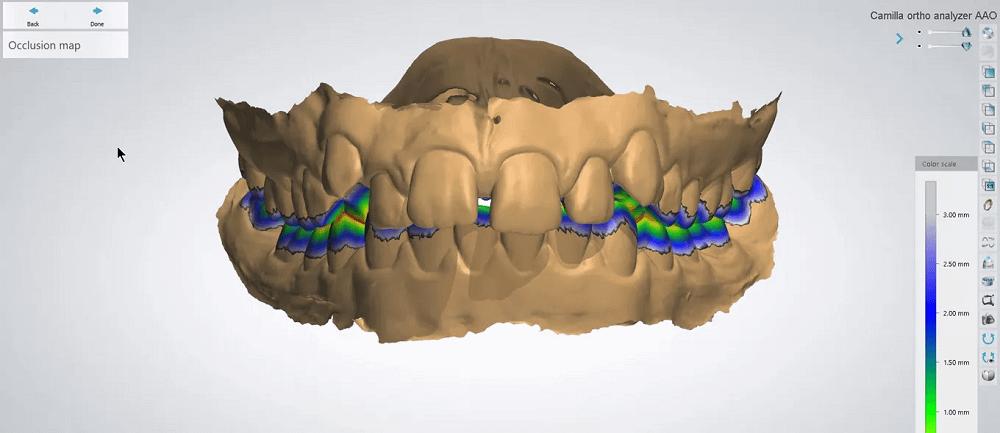 3Shape dental software