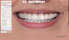 TRIOS Smile Design