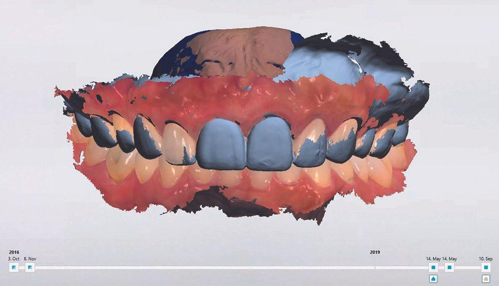 Digital dental monitoring