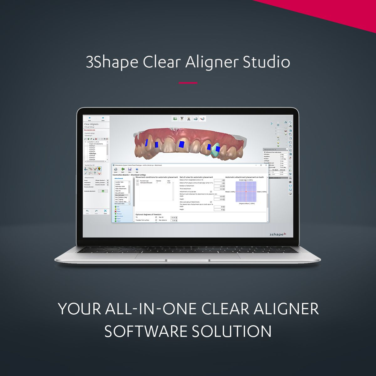 3Shape Clear Aligner Studio - All-in-one Orthodontic Solution