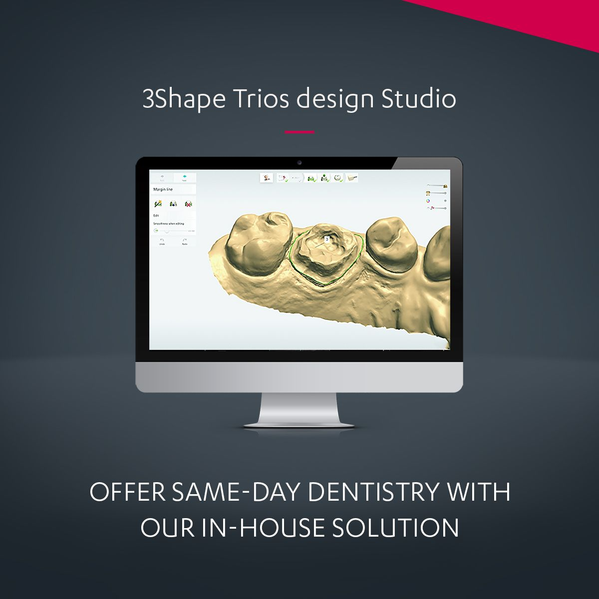 3Shape TRIOS Design Studio – Your Chairside CAD/CAM Solution