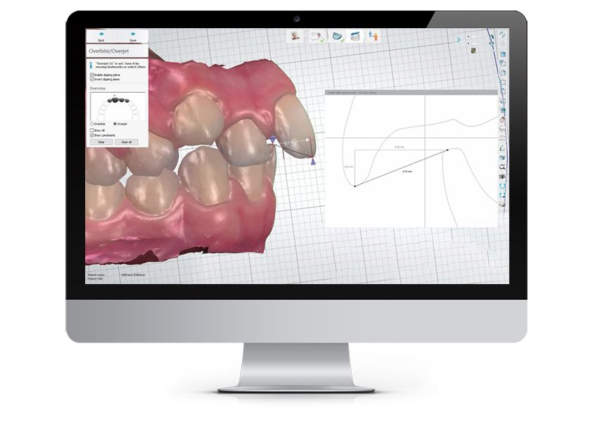 3Shape Orthodontic Planner - Intuitive Diagnosis & Treatment Analysis