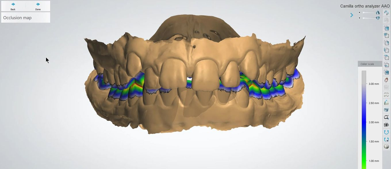 3Shape Orthodontic Planner - Intuitive Diagnosis & Treatment