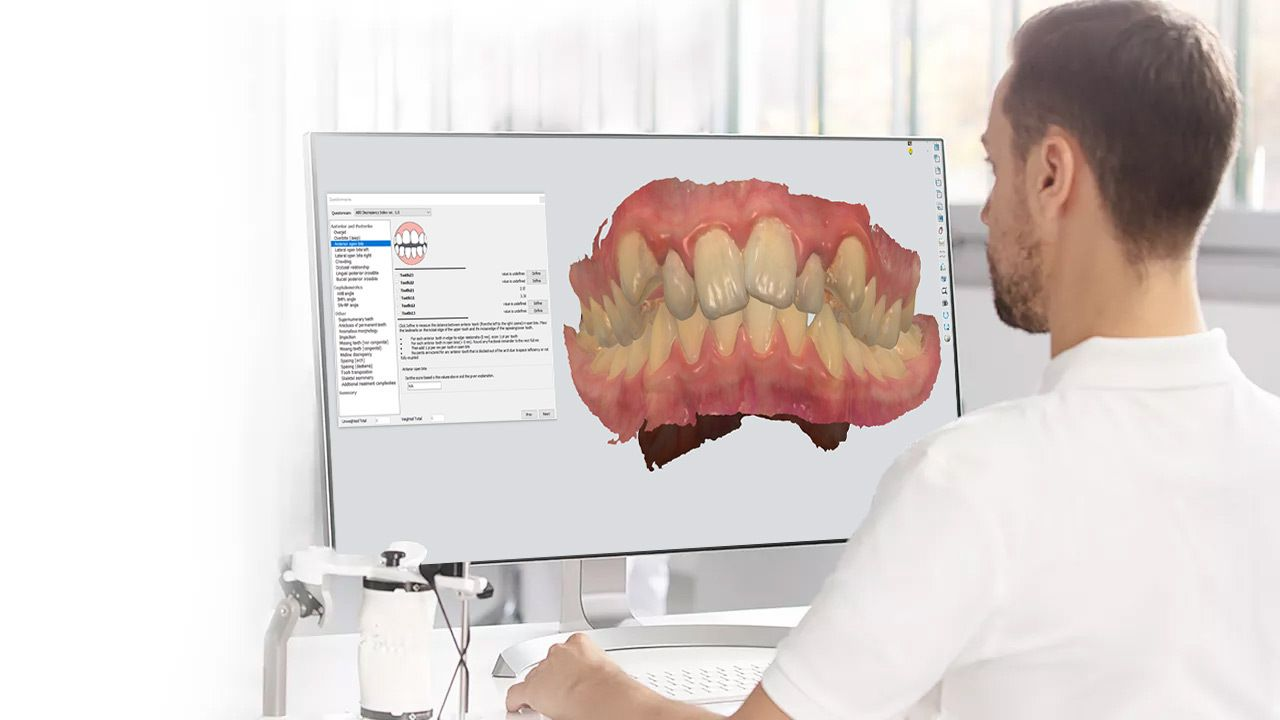 3Shape ortho planner orthodontics software