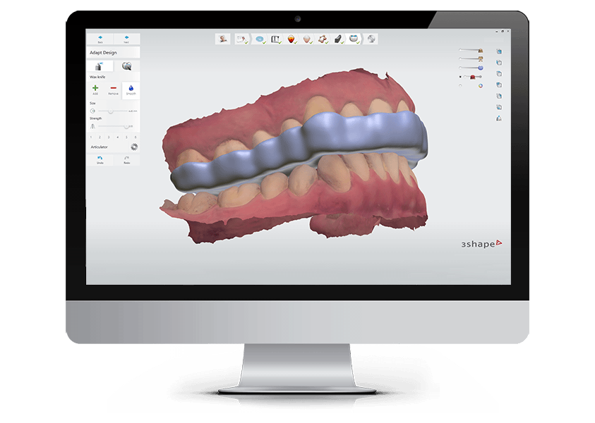 3Shape Ortho System - Complete Solution for Digital Orthodontics
