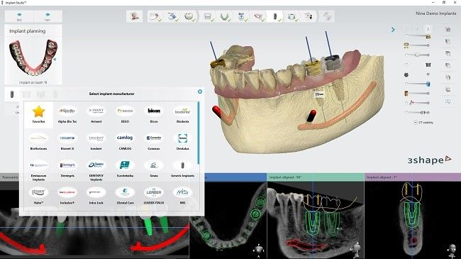 Implant Studio 2016 software