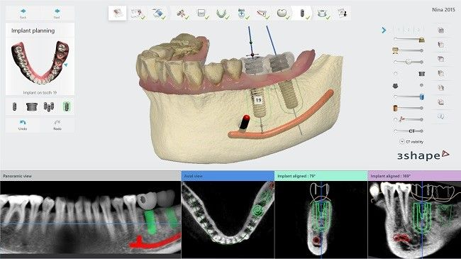 CT/Cone Beam CT imaging with Implant Studio software