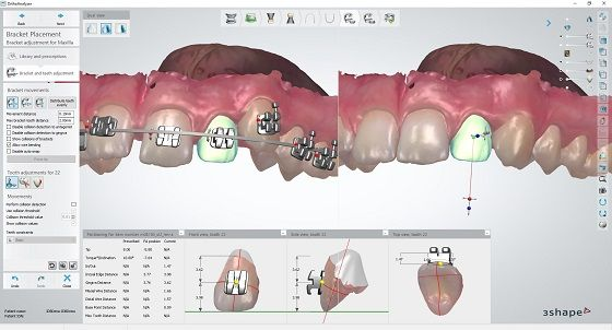 3Shape Indirect Bonding application for dentists