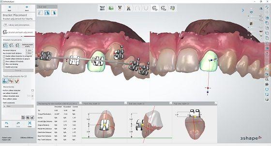 3Shape Indirect Bonding application for dentists