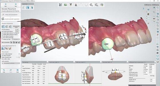 3Shape Ortho System