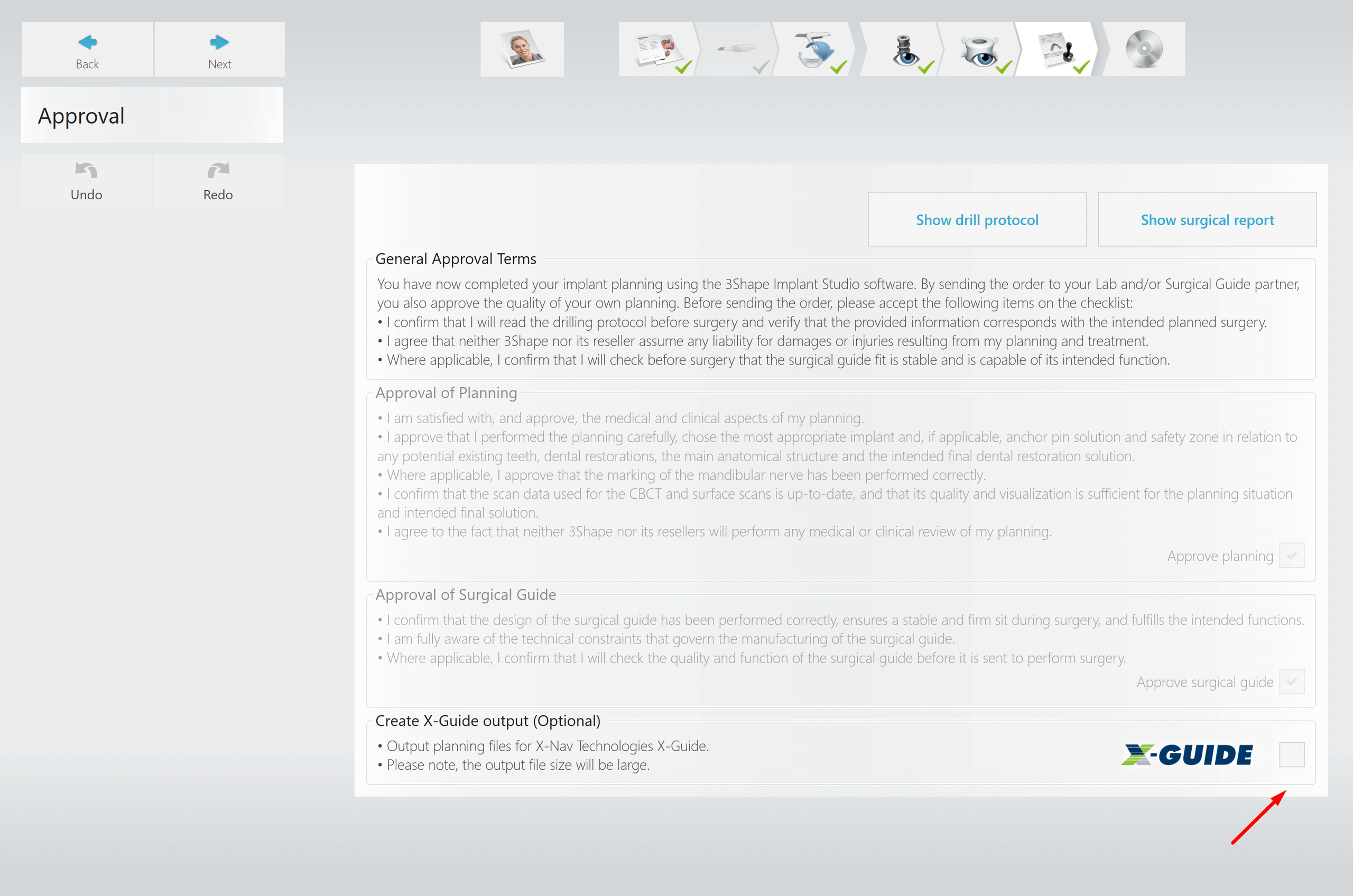 X-Guide integration Implant Studio