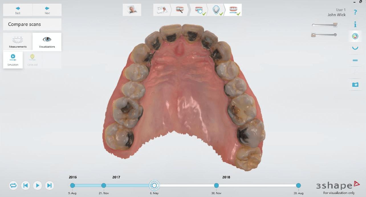 Simulation improvements Patient Monitoring