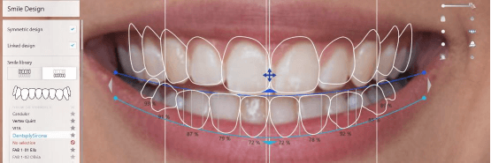 libraries for lower incisors