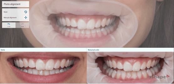 Automated Photo Alignment in Smile Design