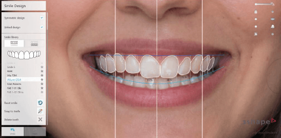 Snap to Teeth Tool in Smile Design